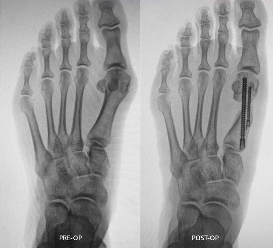 mis-4-x-ray-before-and-after